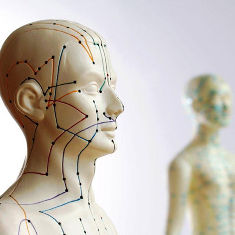 Acupuncture consultation with Freya Sherlock